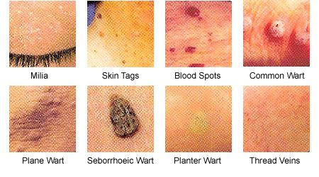 hpv and face warts