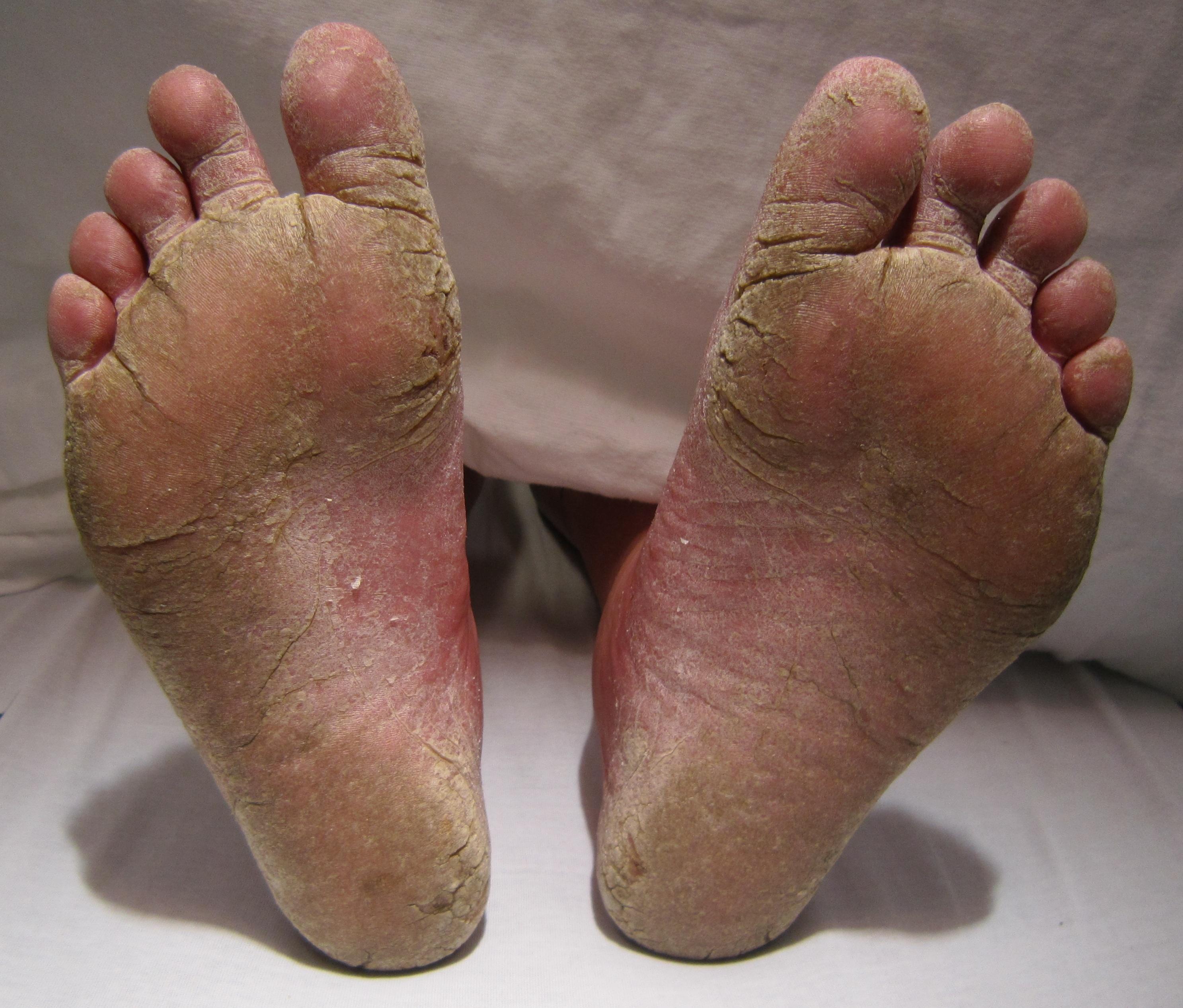 Tinea pedis (ciuperca piciorului) - cauze, simptome si tratament