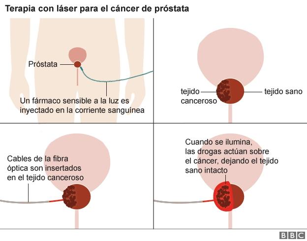 cancer de prostata tratamiento