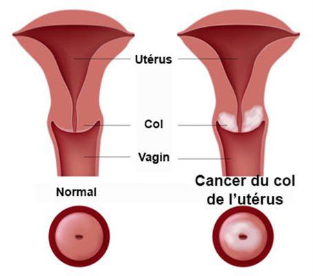Simptomele cancerului de col uterin