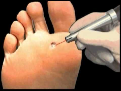 foot warts laser treatment