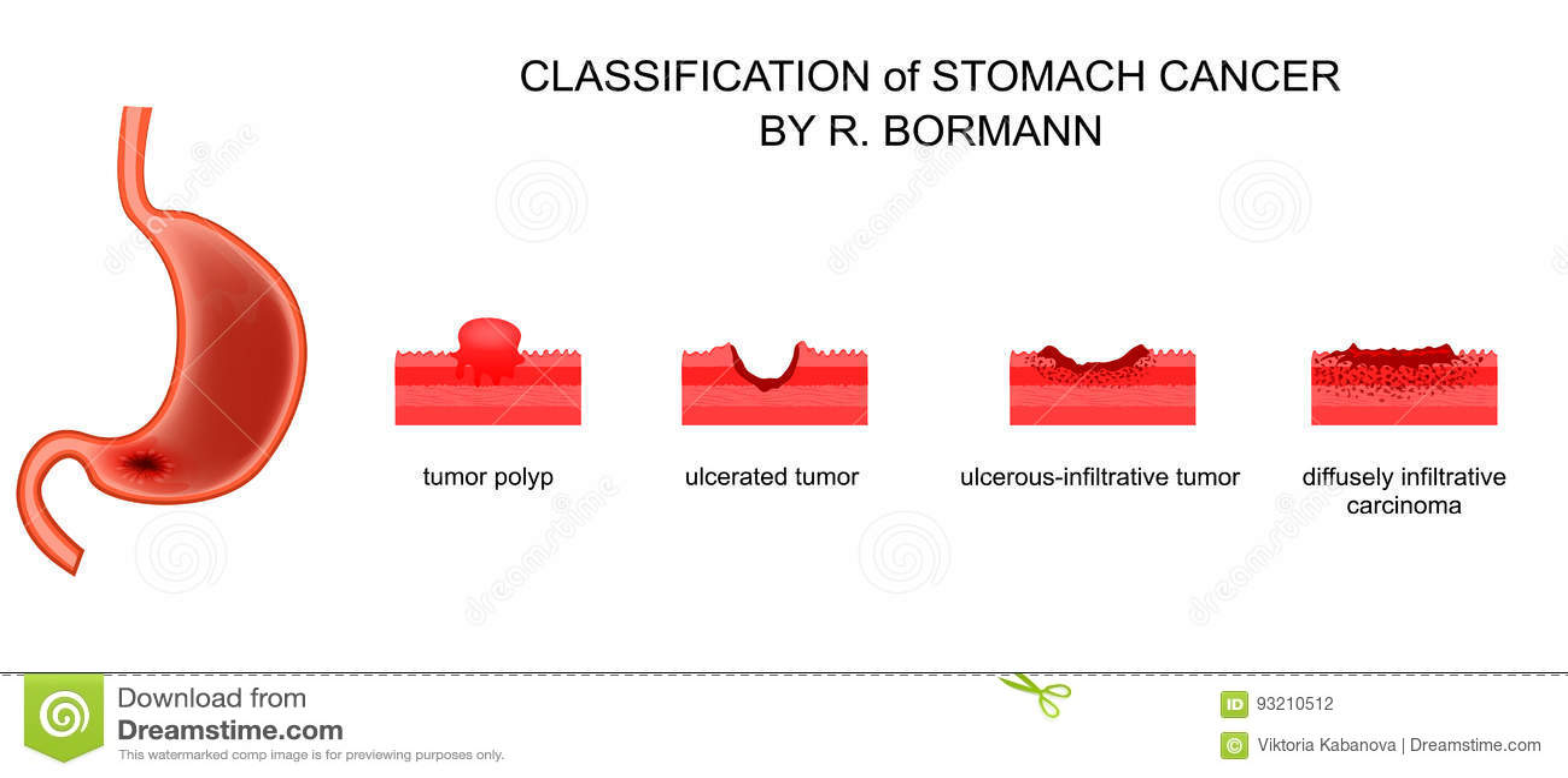 gastric cancer borrmann
