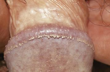 genital wart papilloma