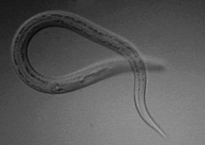 Helminths fluke lamblia toxocariasis