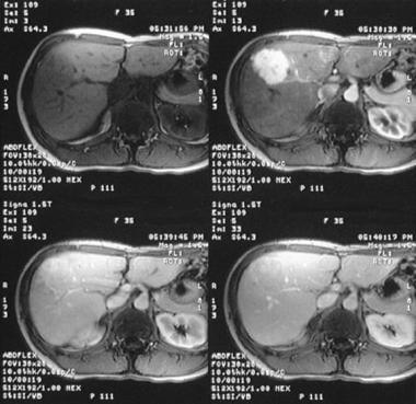 hepatic cancer emedicine
