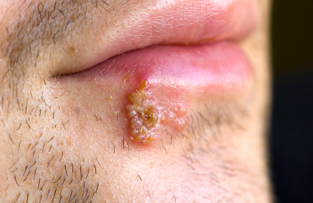 herpes virus sau hpv jus detoxifiant recette