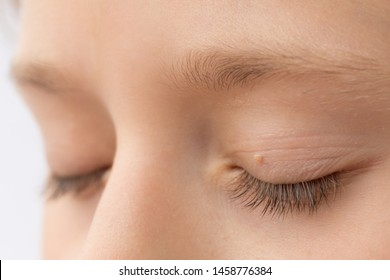 how to remove eyelid papilloma
