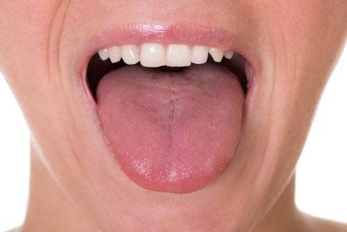 hpv alla lingua urticarie viermi intestinali