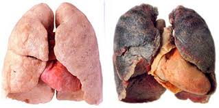 hpv and lung cancer
