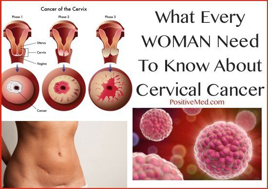 hpv cancer curable