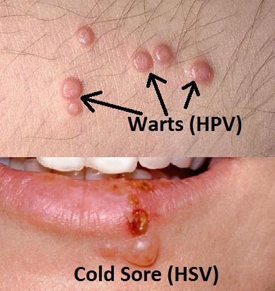 hpv en herpes