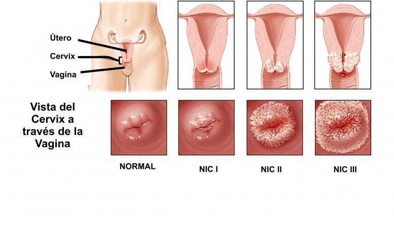 Prevenirea tumorilor de col uterin