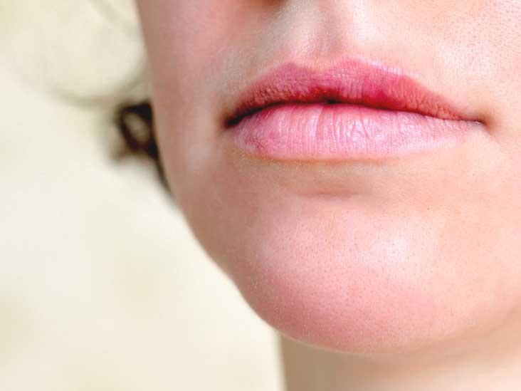 hpv in lip human papillomavirus tagalog