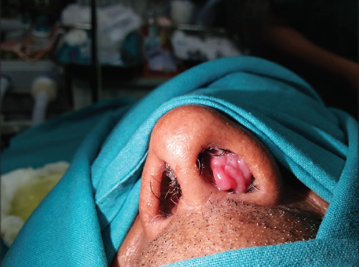 hpv inverted papilloma flatulenta medicatie