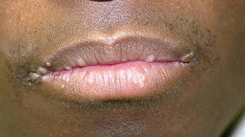 hpv mouth lips