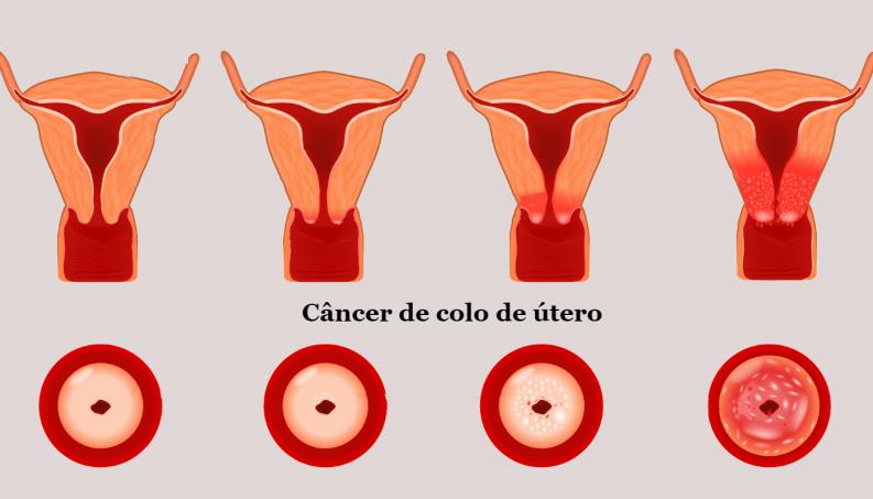 cancer urinar tratament helmintox 250 mg posologie