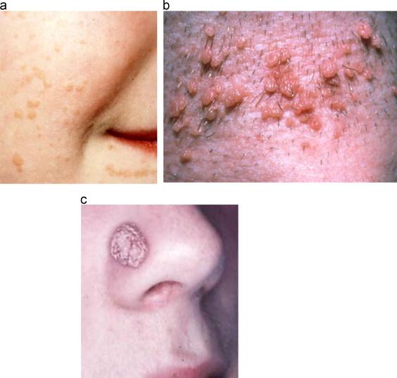hpv skin spots hpv gardasil vaccine