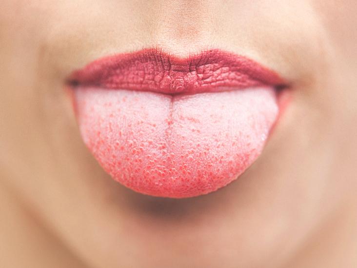hpv skin tags in mouth cancerul de col uterin simptome