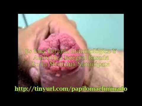 hpv uomo come si cura cancer pancreas famosos