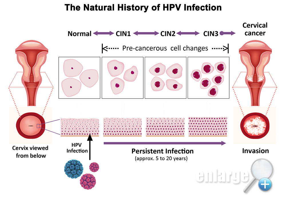 hpv virus and cell changes