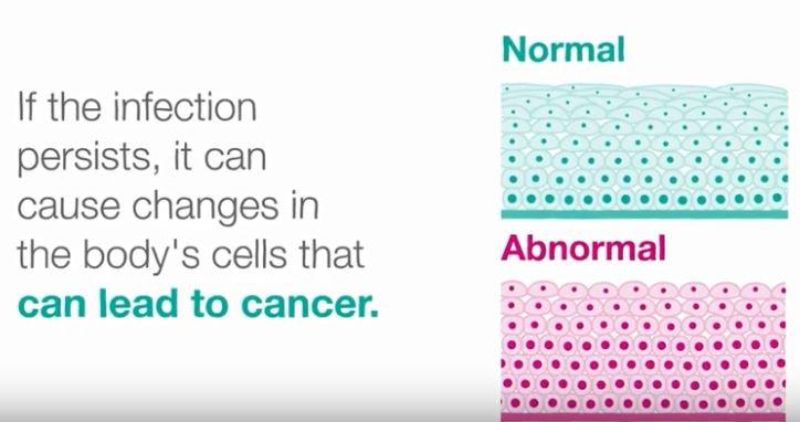 uterine cancer walk
