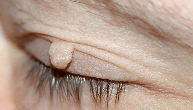Tratamentul paraziților papiloma
