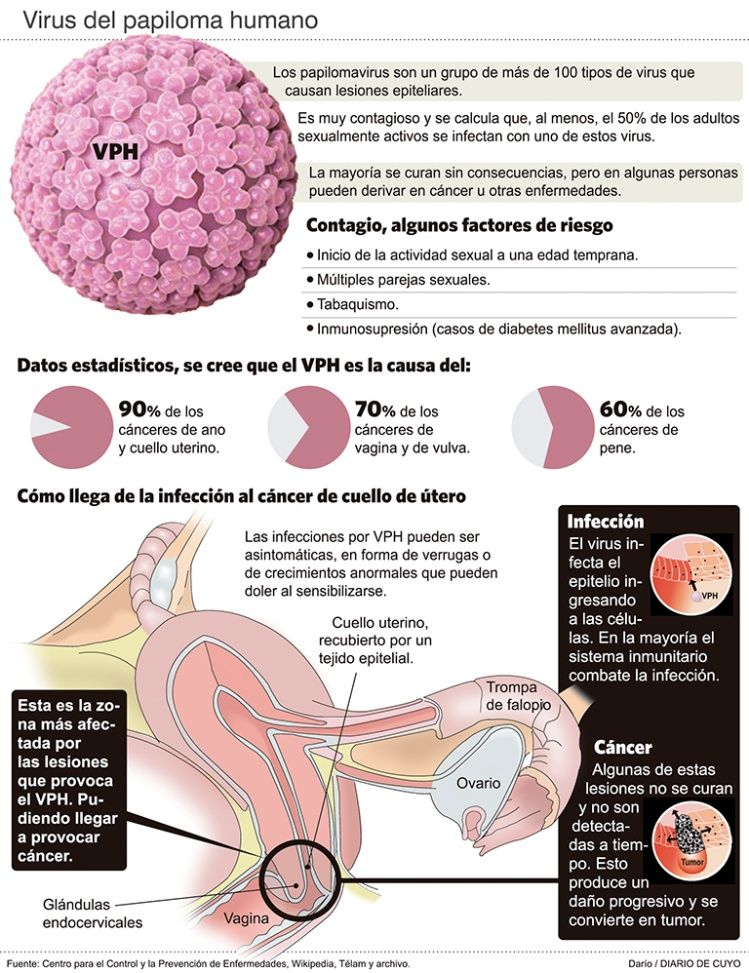 hpv virus que es papilloma virus ano sintomi