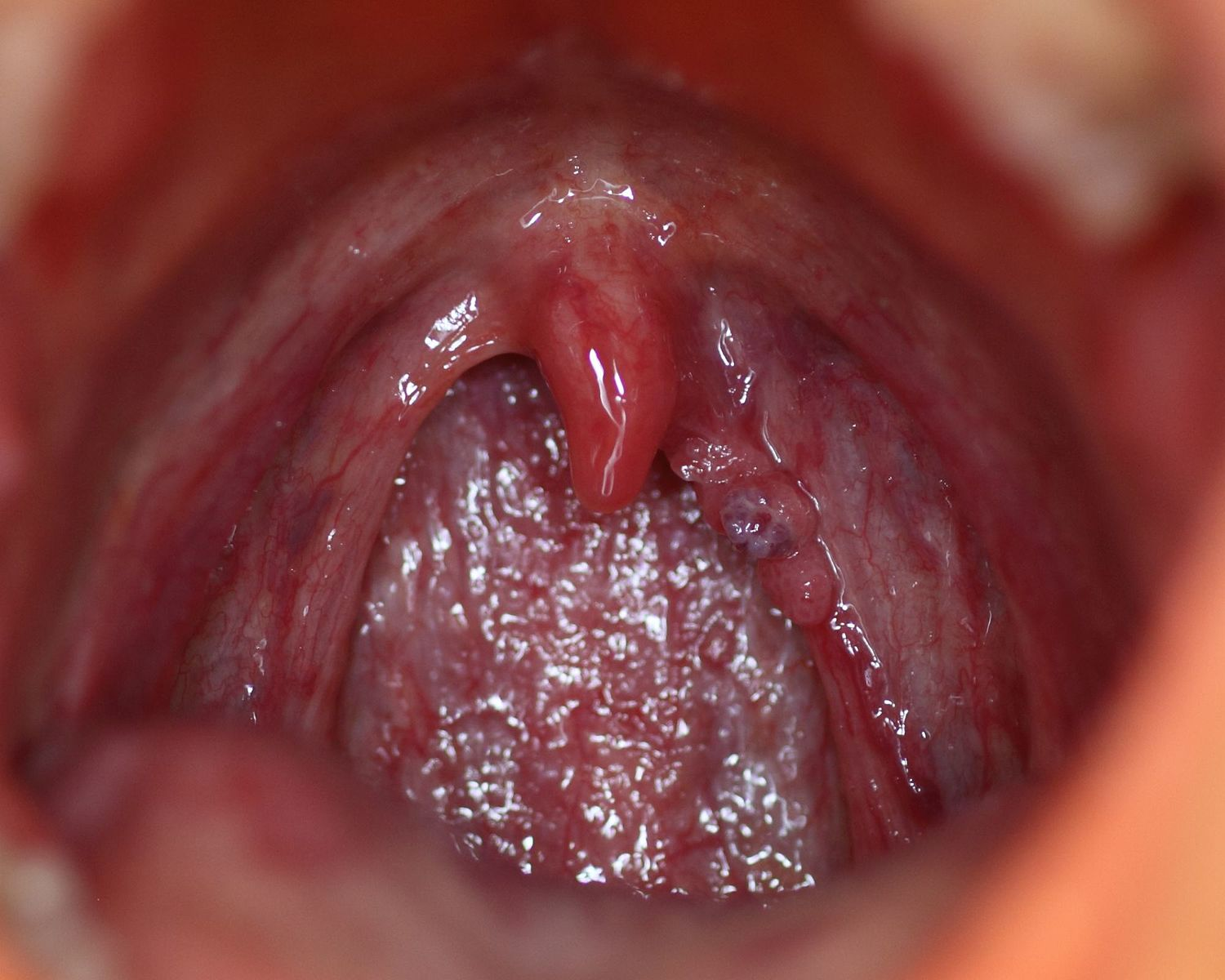 hpv virus symptoms throat