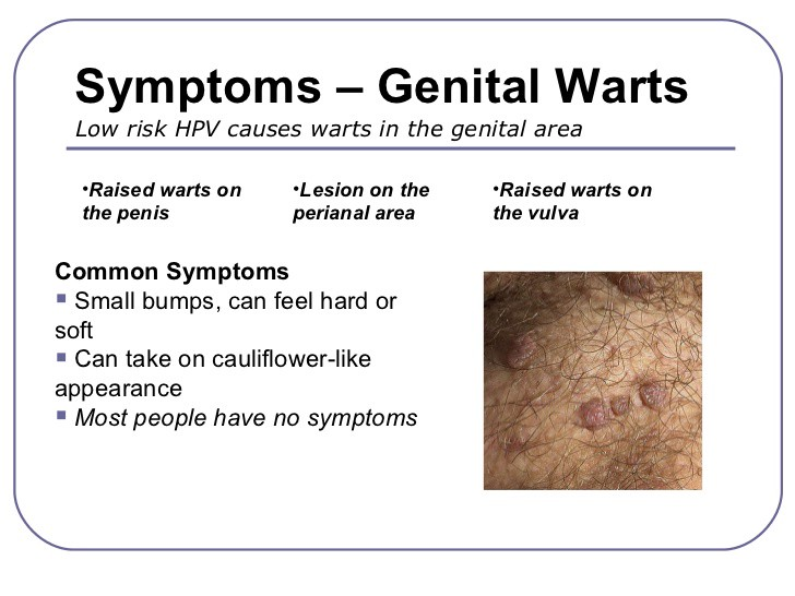 hpv warts treatment