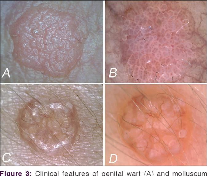 Molluscum contagiosum: modalități de infecție, simptome și tratament la domiciliu