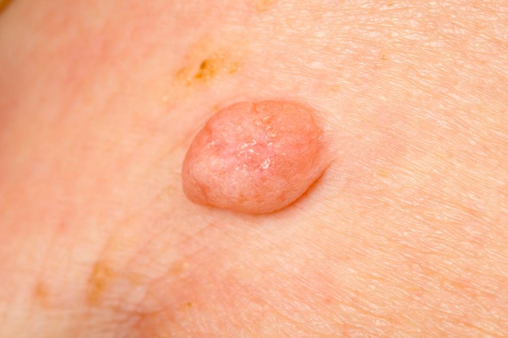 helminth definition and example hpv dry skin patches