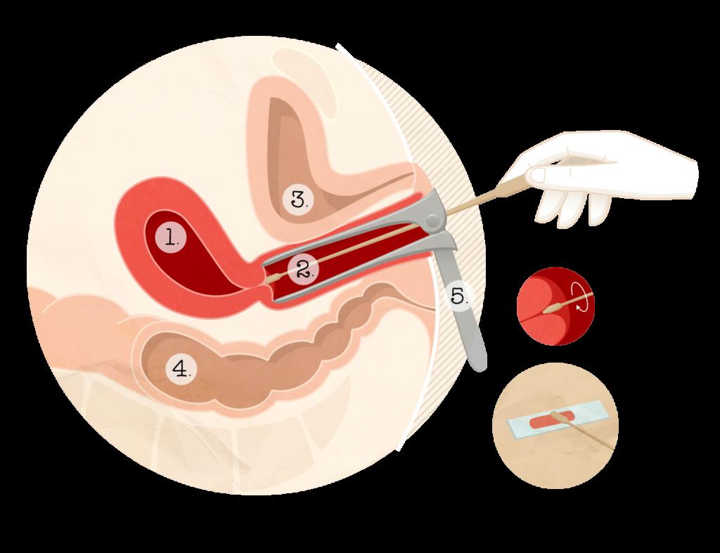human papillomavirus frottis