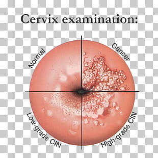 are intraductal papillomas cancerous cervical cancer recurrence rate