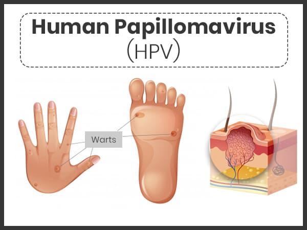 human papillomavirus main causes