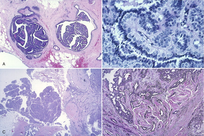 intraductal papilloma differentials
