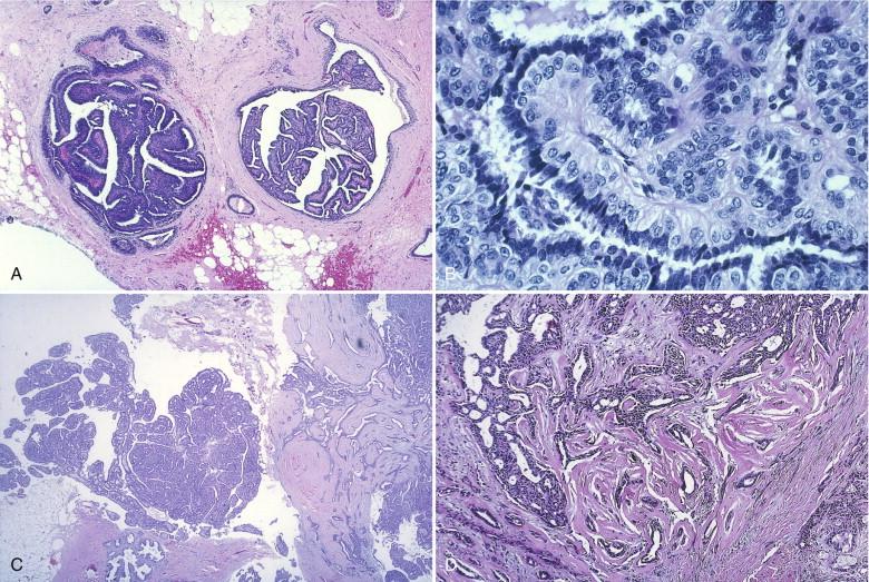 human papillomaviruses abbreviation papillary urothelial tumors