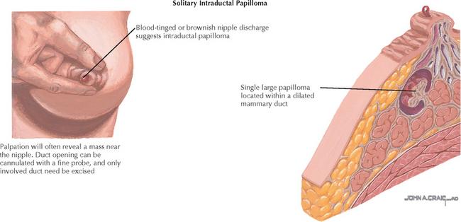cancer de colon y diarrea