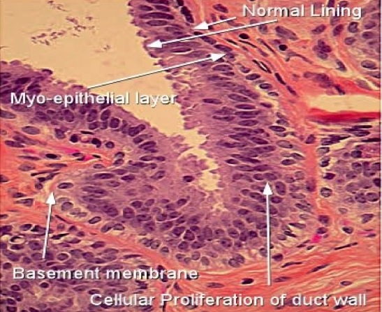 intraductal papilloma with focal atypical hyperplasia