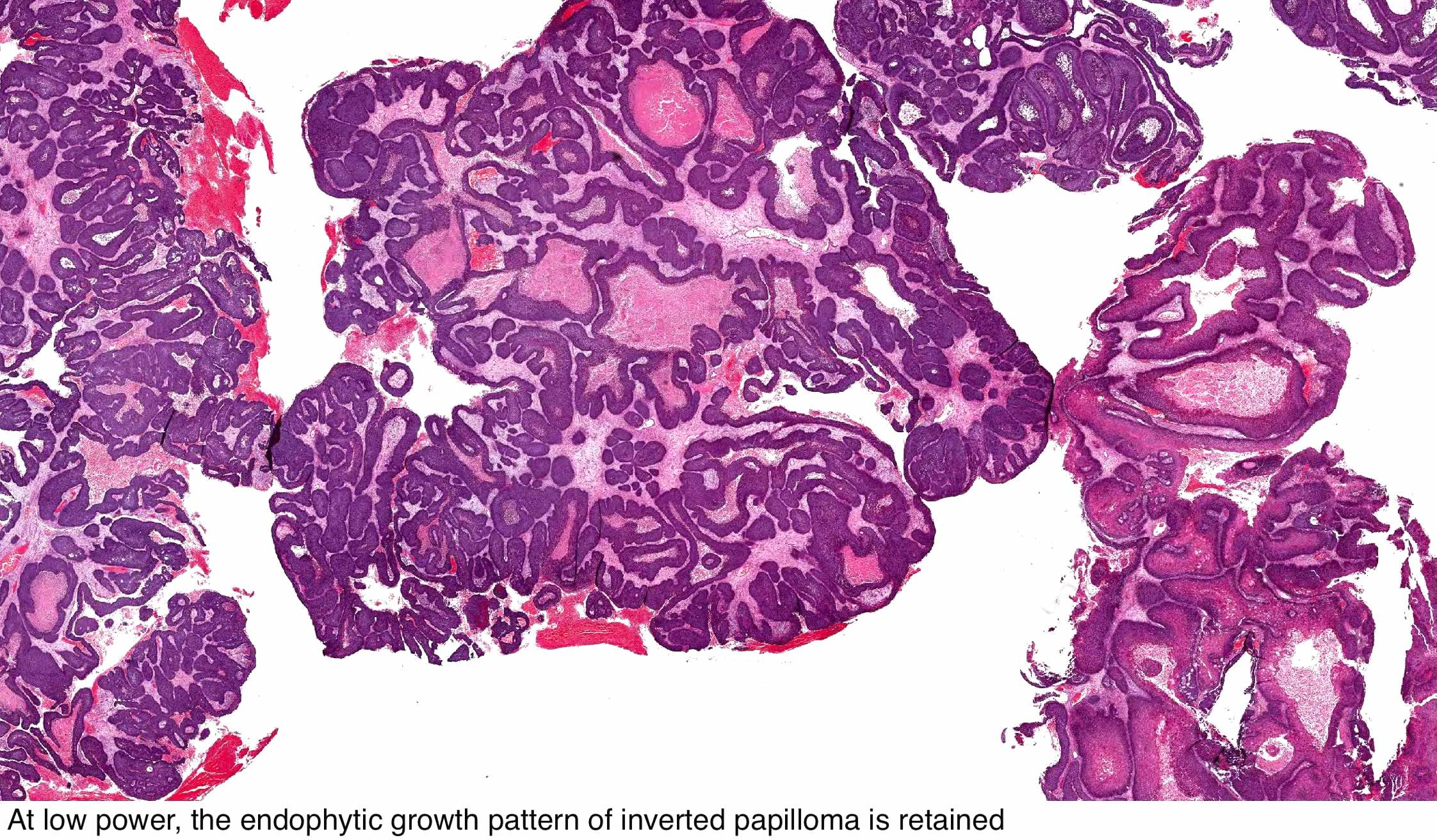 inverted papilloma nasal cavity pathology outlines natural cure hpv cervical cancer