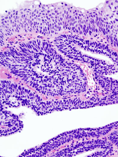 inverted papilloma of urinary bladder gastric cancer of progression