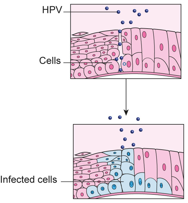 is hpv cancer cells cervical cancer hpv 16 18