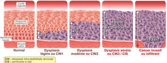 lesion hpv et grossesse
