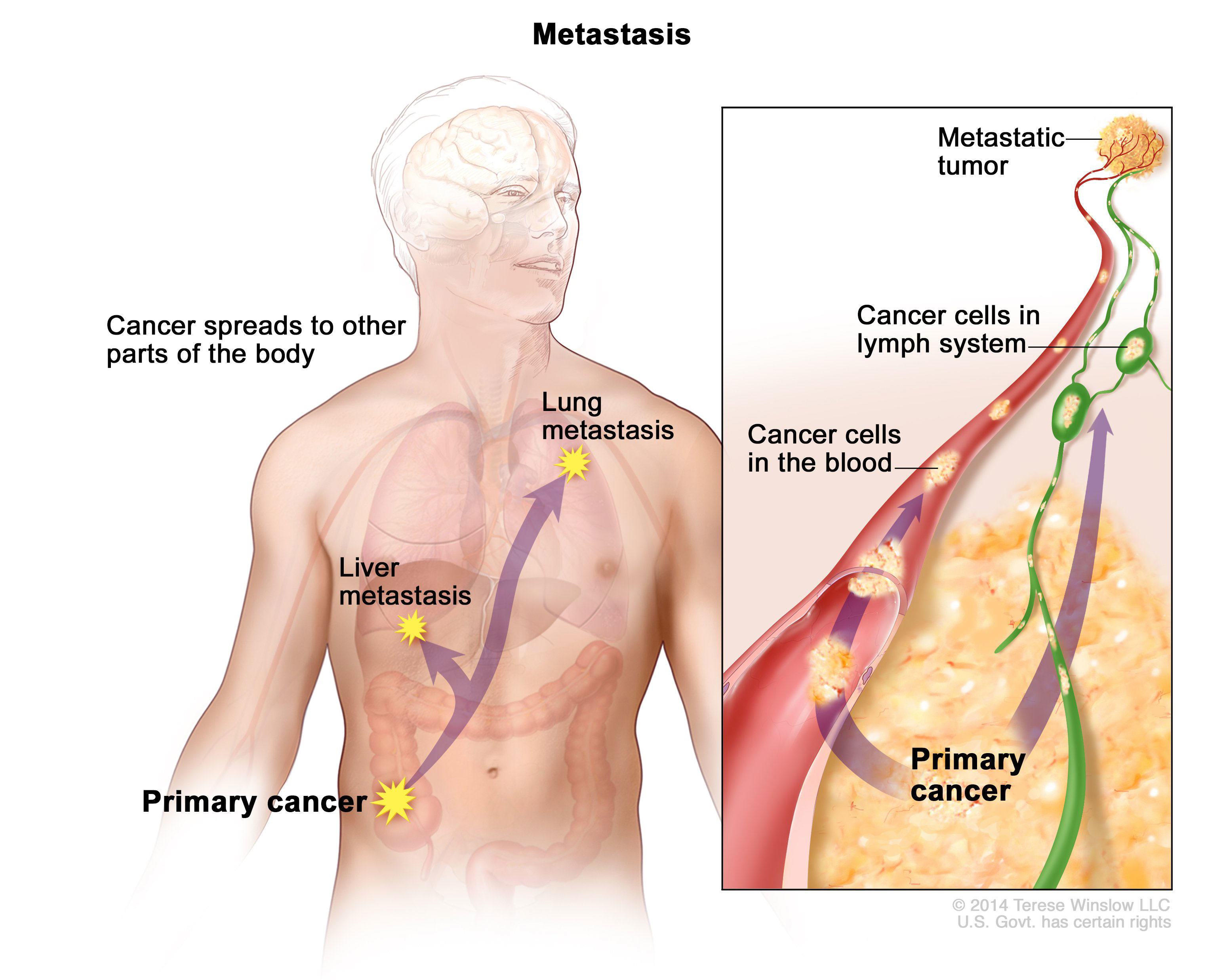 metastatic cancer carcinoma