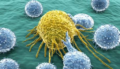 metastatic cancer cells