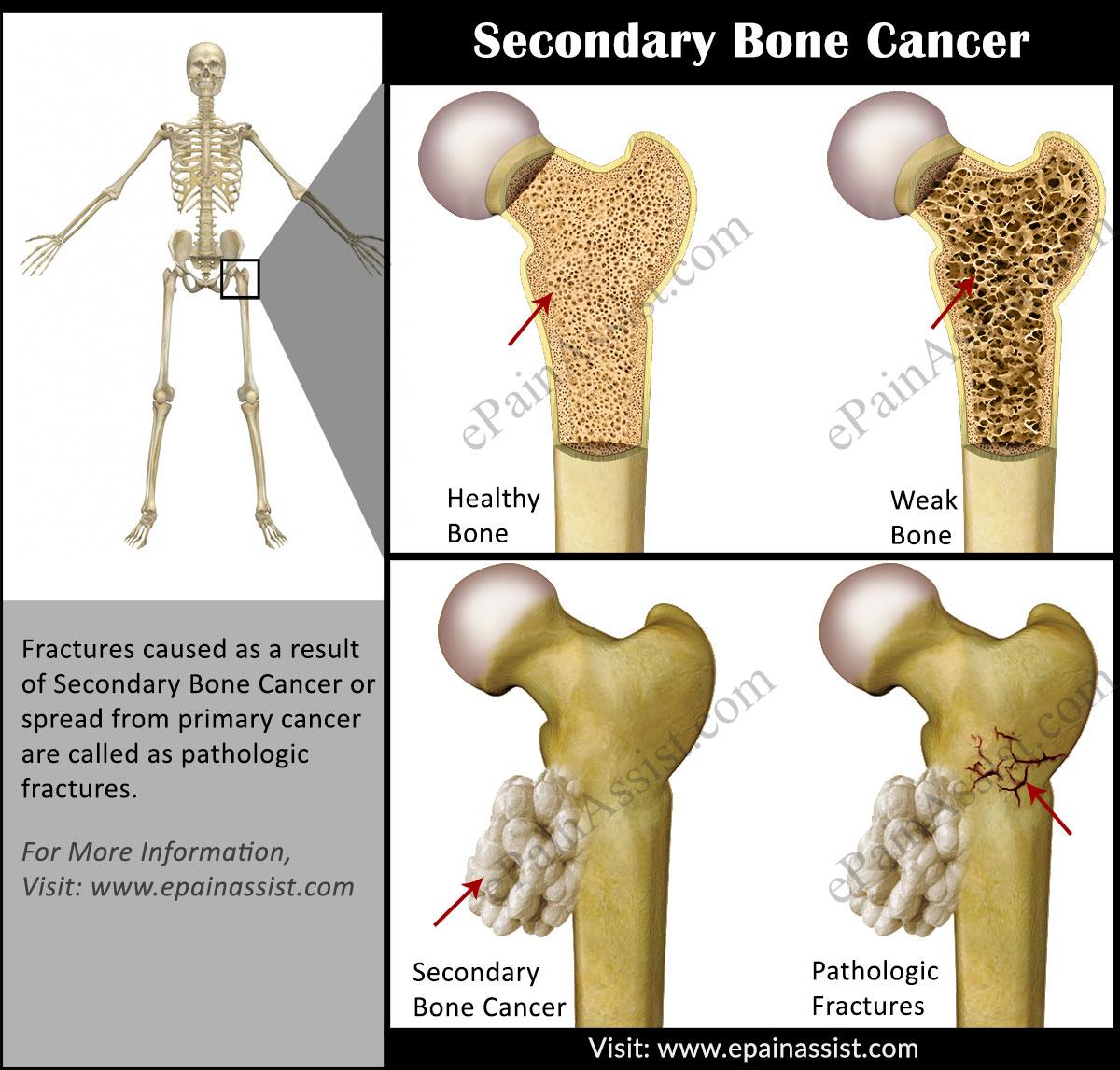 metastatic cancer of the bone enterobius vermicularis ciclo de vida