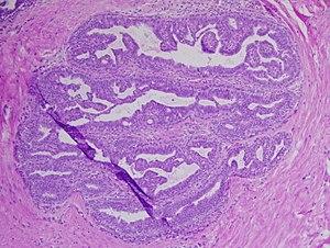 mild papilloma definition