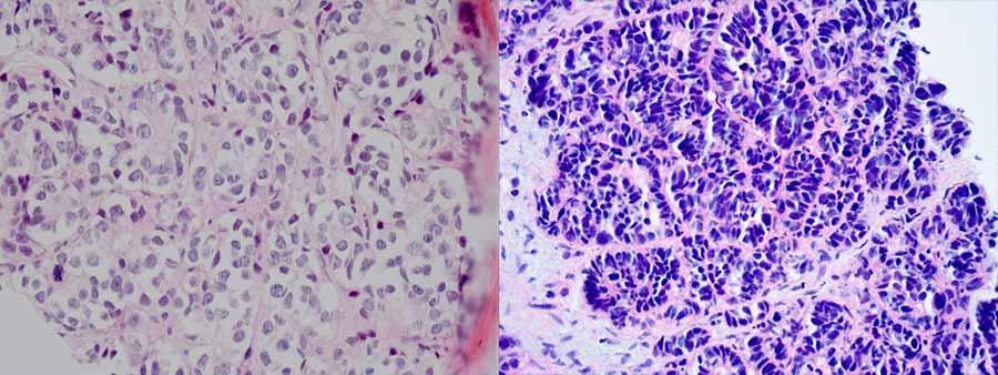 neuroendocrine cancer of prostate gljivice i paraziti u stolici