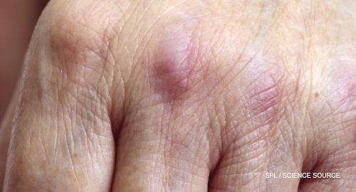 Terapia tintita - Totul despre acest tratament oncologic