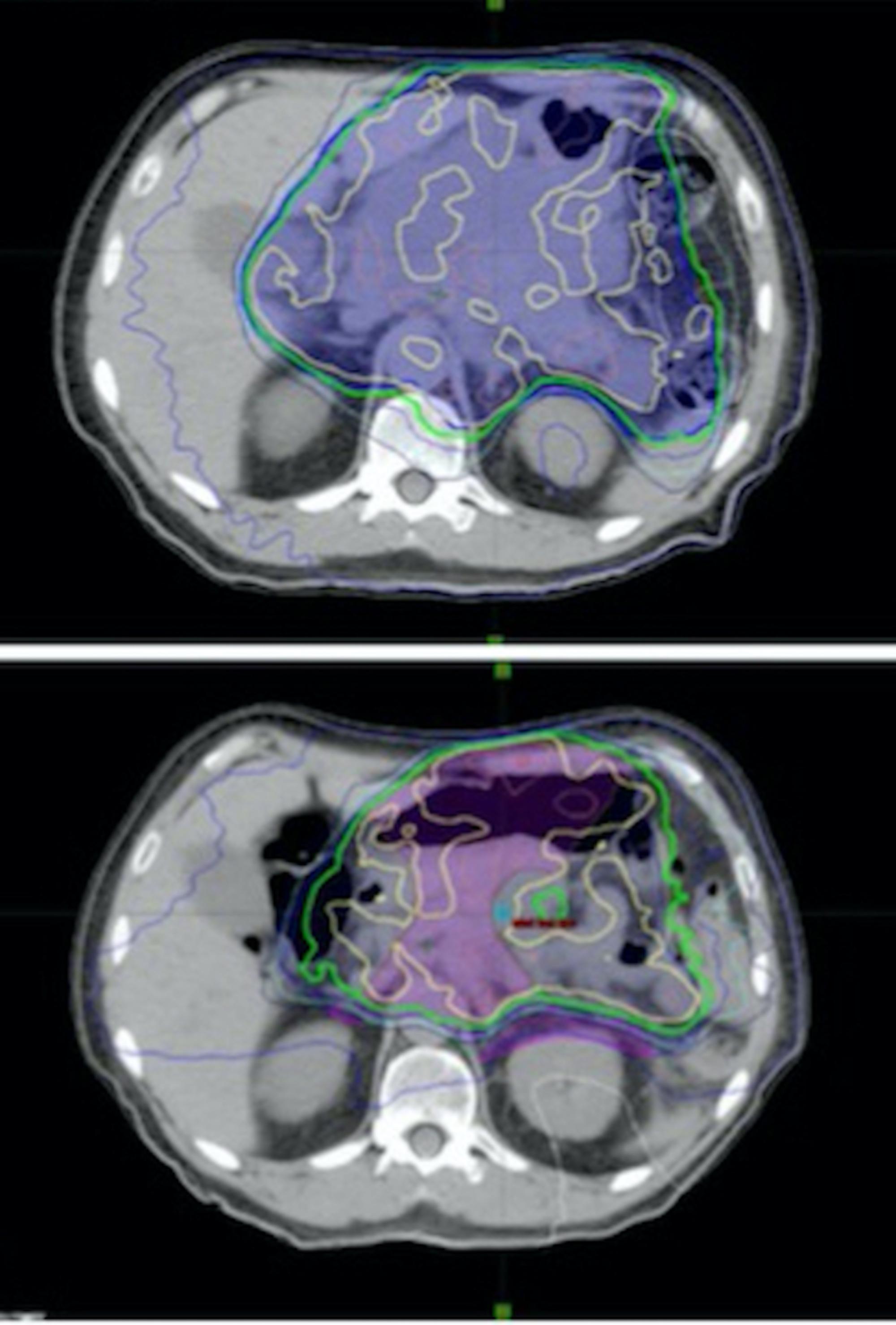 neuroendocrine cancer spread to liver