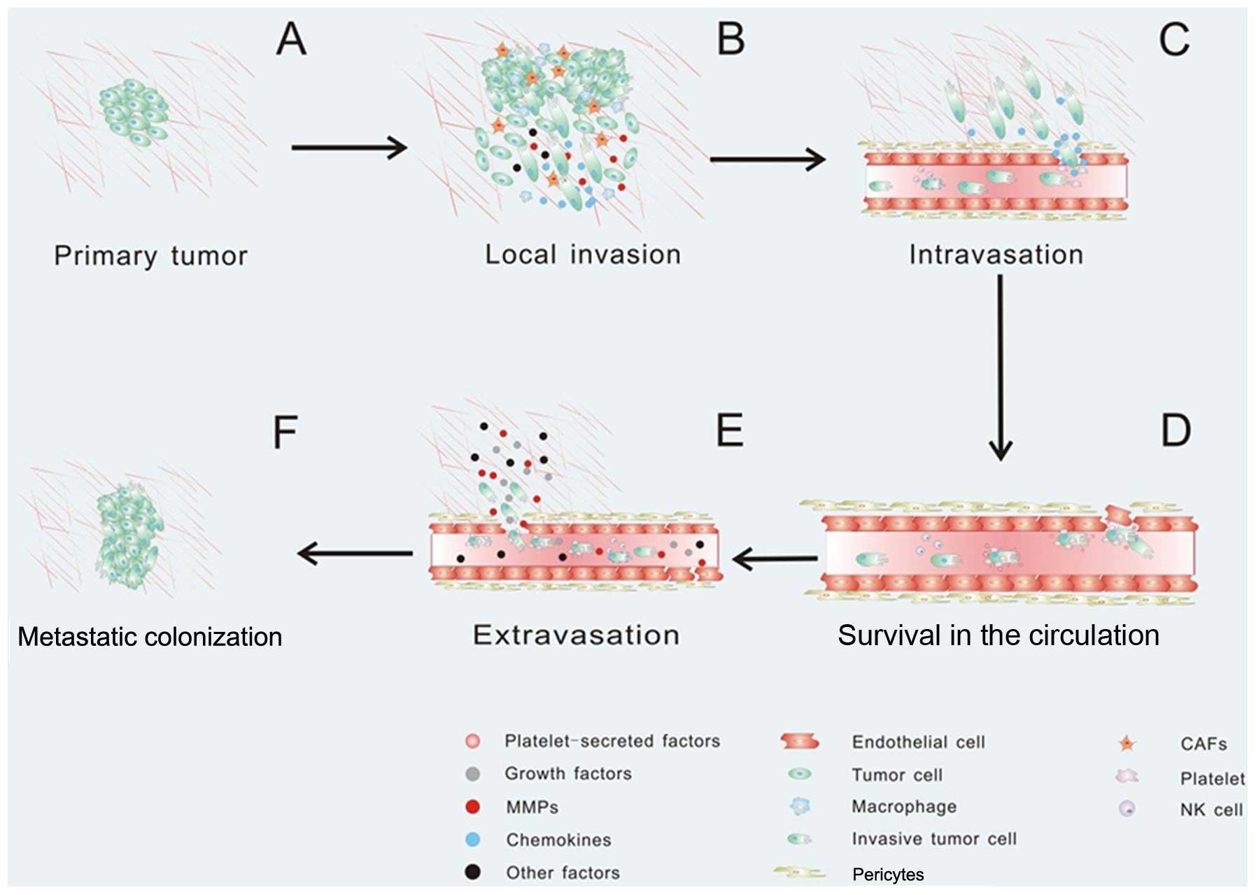 ovarian cancer development and metastasis